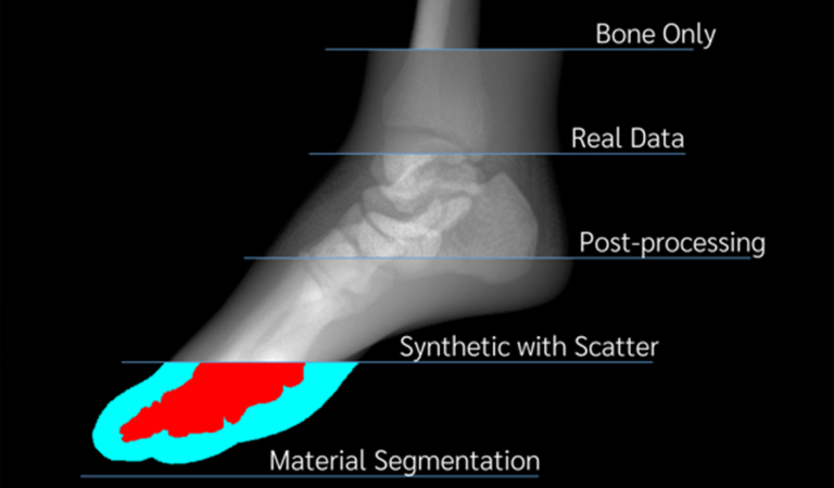 Solving the AI data problem in medical X-ray imaging