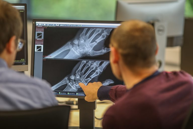 IBEX secures £3.25m funding to transform osteoporosis diagnosis and care