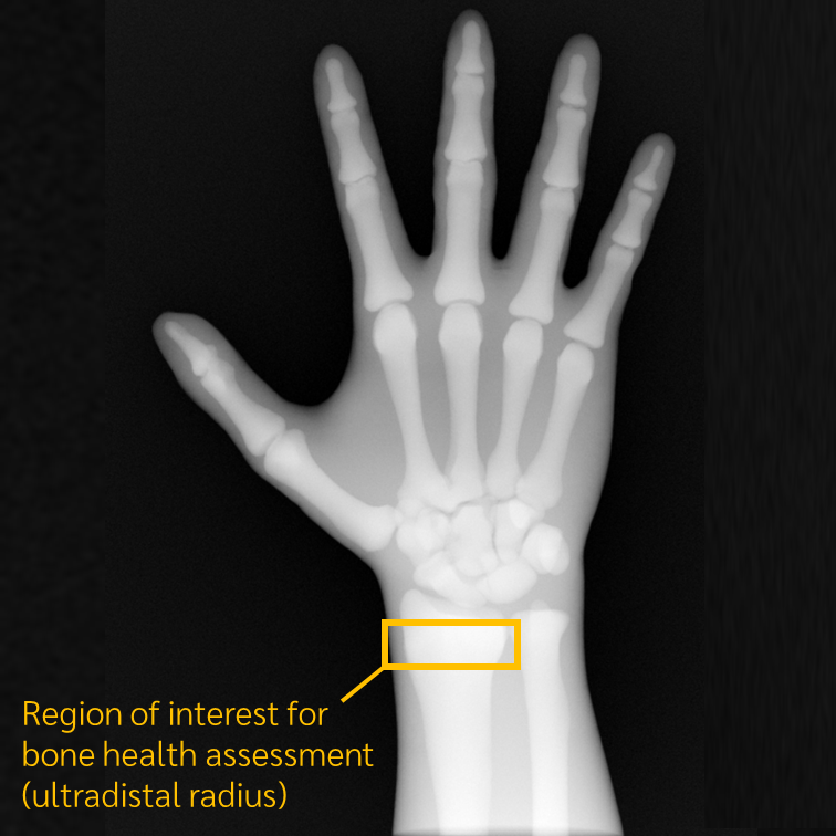 Simulated Clinical Study Reveals Trueview Accurately Predicts Wrist Bone Health