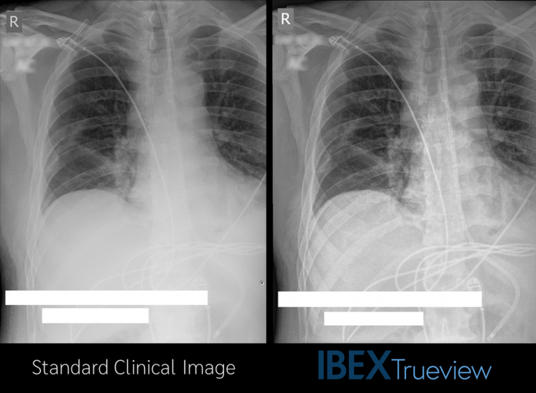 Diagnostic Images with Enhanced Tube and Line Visibility in Mobile CXR